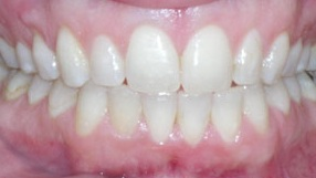 After: Invisalign Wilmington DE