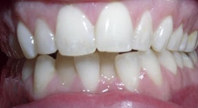 Before: invisalign in wilmington MA
