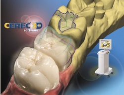 CEREC Wilmington MA
