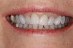 Teeth-Whitening-Deep-Bleaching-After-Image
