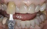 Teeth-Whitening-Deep-Bleaching-Before-Image