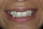 Six-Month-Smiles-Case-Two-Before-Image