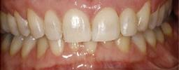 Adult-Braces-After-Image