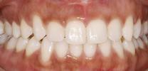 Six-Month-Smiles-Case-One-After-Image