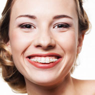 Caselle Dental, LLC | Smiling Woman with Braces